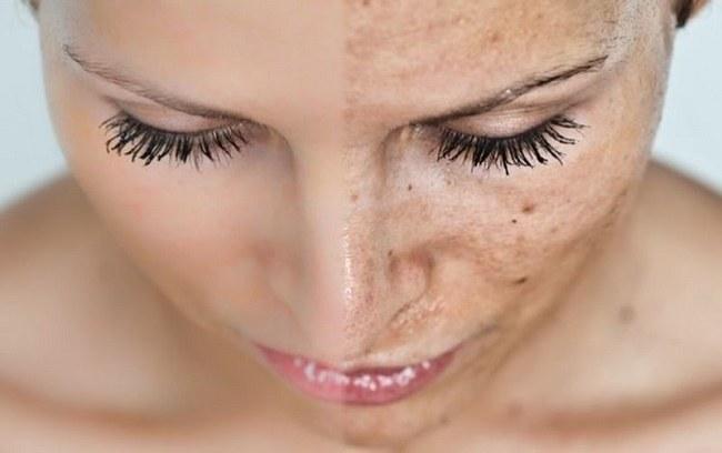 przebarwienia skóry /© Photogenica