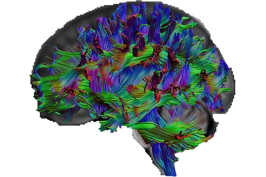 Przebieg włókien nerwowych pokazany metodą obrazowania tensora dyfuzji /RUB, Erhan Genç /Materiały prasowe