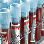 Przeciwciało, które zabija 98 proc. szczepów wirusa HIV