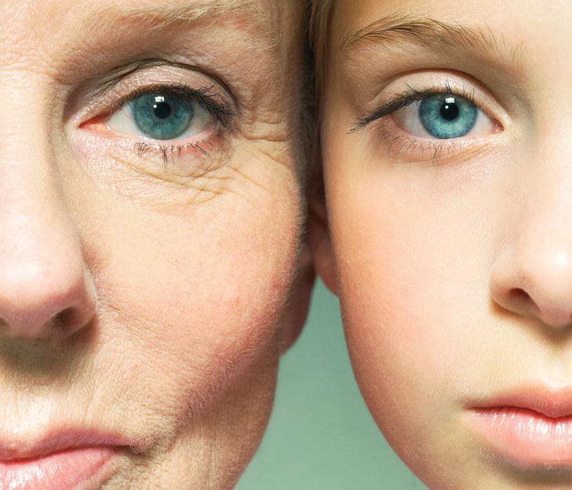 przedwczesne starzenie się /© Photogenica