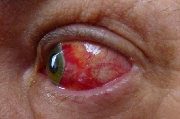 Przekrwienie oczu to jeden z głównych objawów bezsenności /123RF/PICSEL