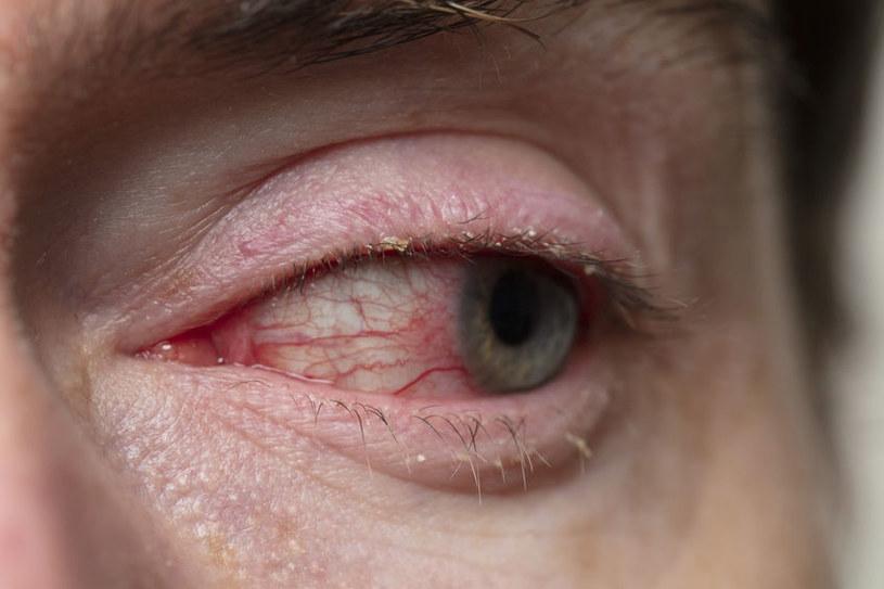 Przekrwione oczy - działaj natychmiast! /123RF/PICSEL