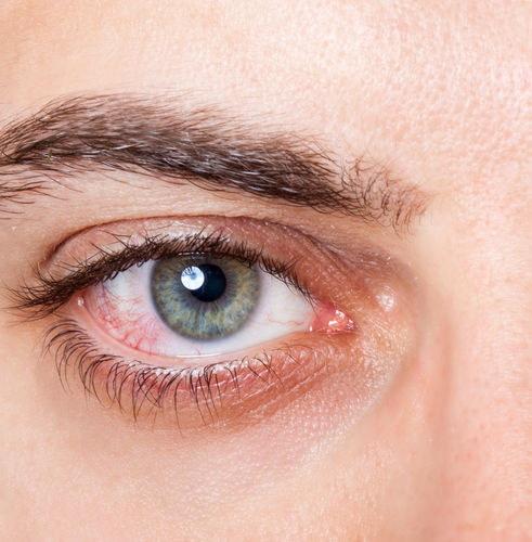 Przekrwione oczy /©123RF/PICSEL