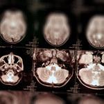 Przełom w walce z glejakiem mózgu