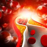 Przełom w walce z podwyższonym cholesterolem. Pomoże terapia genowa