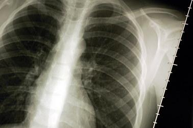 Przełom w walce z rakiem płuc!