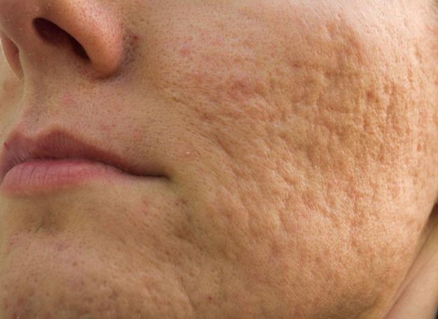 Przesuszanie skóry pobudza gruczoły łojowe do jeszcze większej produkcji sebum /123RF/PICSEL