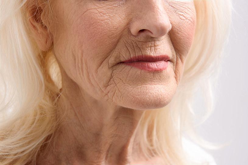 Przesuszenie skóry to prosta droga do zmarszczek... /123RF/PICSEL