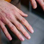 Przesuszona skóra: Jak się pozbyć?
