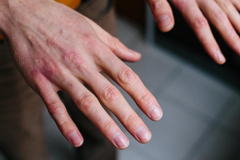 Przesuszona skóra może być zaczerwieniona, swędzieć, a także być podatna na stany zapalne /123RF/PICSEL