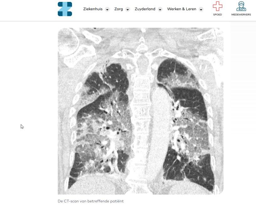 Prześwietlenie płuc chorego na covid, fot. https://www.zuyderland.nl /