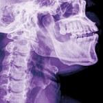 Przeszczep głowy coraz bliżej? Przełomowe badania