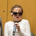 Przeszczep twarzy: 26-letnia Joanna opuszcza szpital