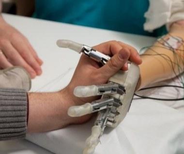 """Przeszczepiono pierwszą protezę ręki, która """"czuje"""""""