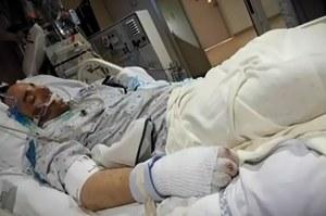 Przez 12 godzin leżał w śnieżnej zaspie. Lekarze go odratowali