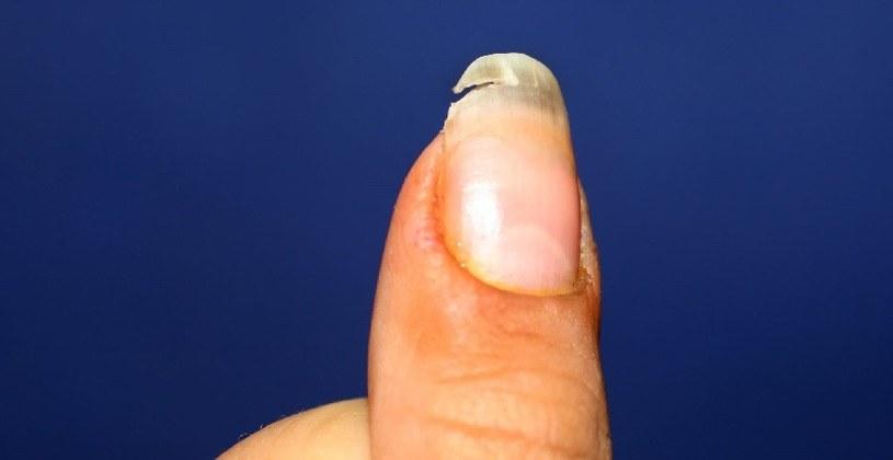 Przyczyn rozdwajających paznokcie należy szukać m.in.  w diecie /123RF/PICSEL