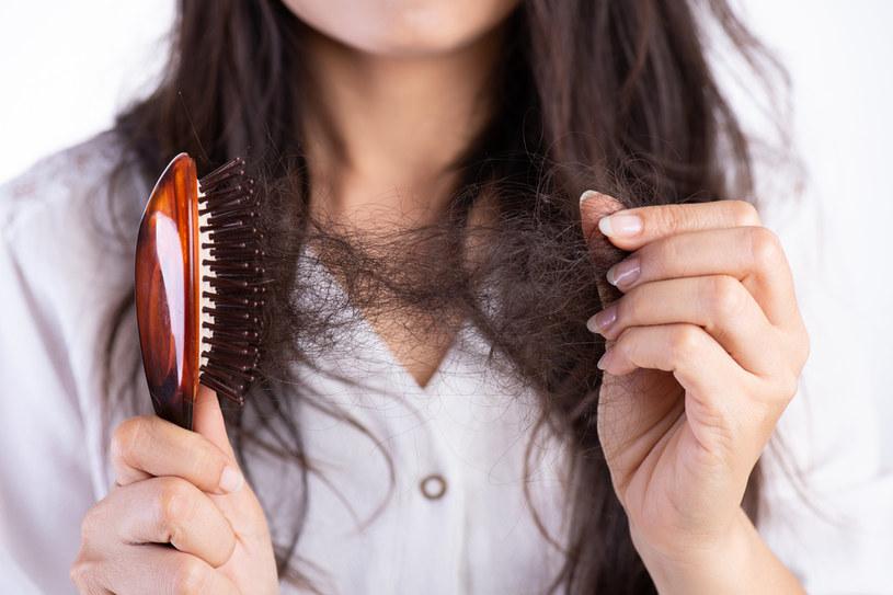 Przyczyn wypadania włosów jest wiele. Ważne, żeby w takim przypadku skonsultować się ze specjalistą /123RF/PICSEL