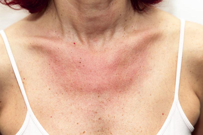 Przyczyny alergii na słońce /©123RF/PICSEL
