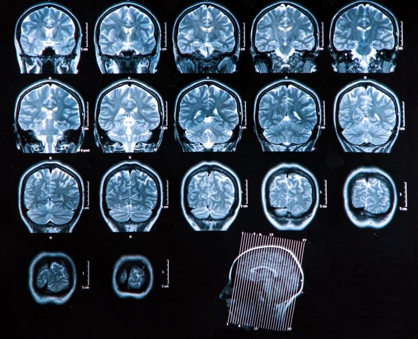 Przyczyny choroby Parkinsona nie są w pełni znane /©123RF/PICSEL