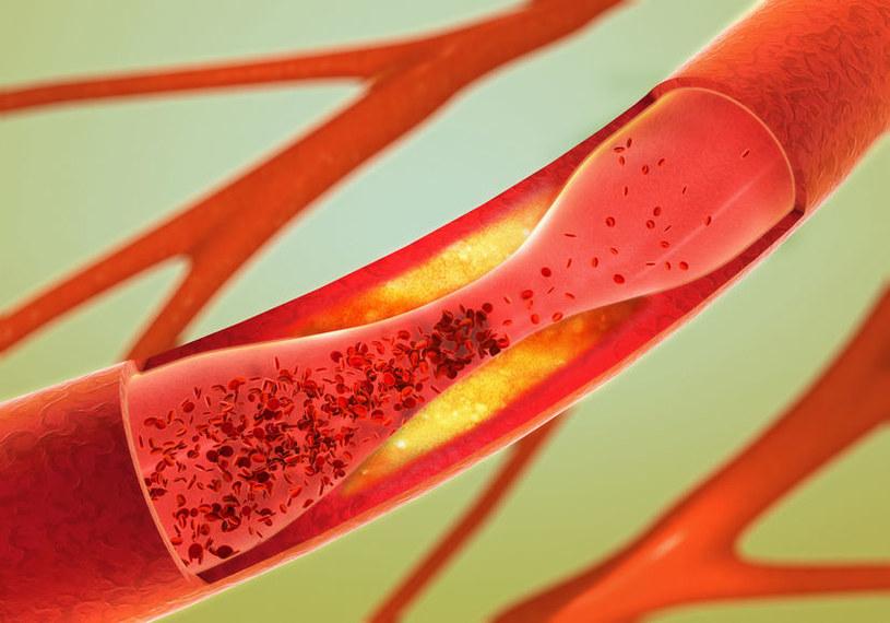 Przyczyny choroby wieńcowej /©123RF/PICSEL