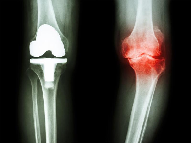 Przyczyny osteoartrozy /©123RF/PICSEL
