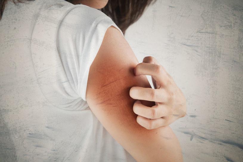 Przyczyny swędzenia skóry /©123RF/PICSEL