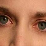 Przyczyny zaczerwienionych oczu i proste sposoby jak sobie z nimi radzić
