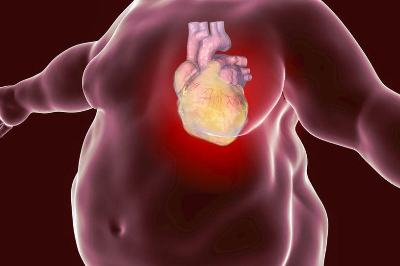 Przyczyny zawału serca /©123RF/PICSEL