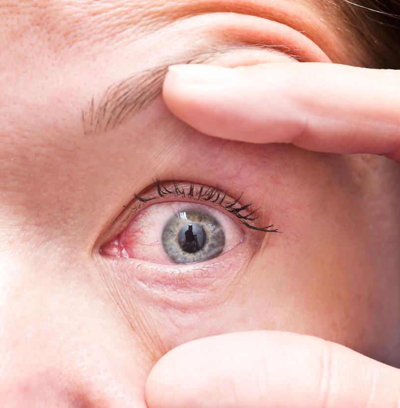 Przyjrzyj się swoim oczom - jeśli są zaczerwienione, to może być np. alergia /123RF/PICSEL