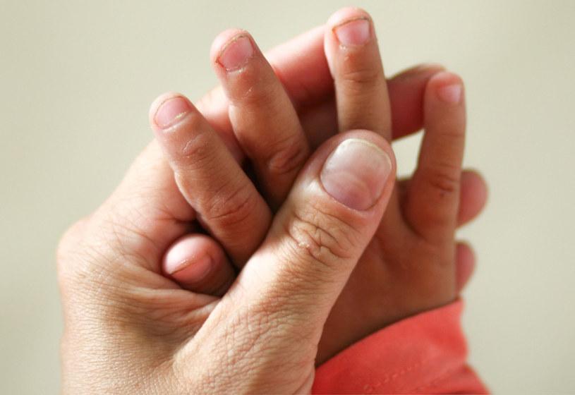 Przyjrzyj się uważnie swoim paznokciom. Mogą zdradzić, czy przeszedłeś COVID-19 /123RF/PICSEL