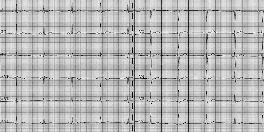 Przykładowe EKG /