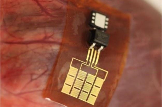 Przyszłe implanty energię będą czerpać bezpośrednio z naszego organizmu? /materiały prasowe