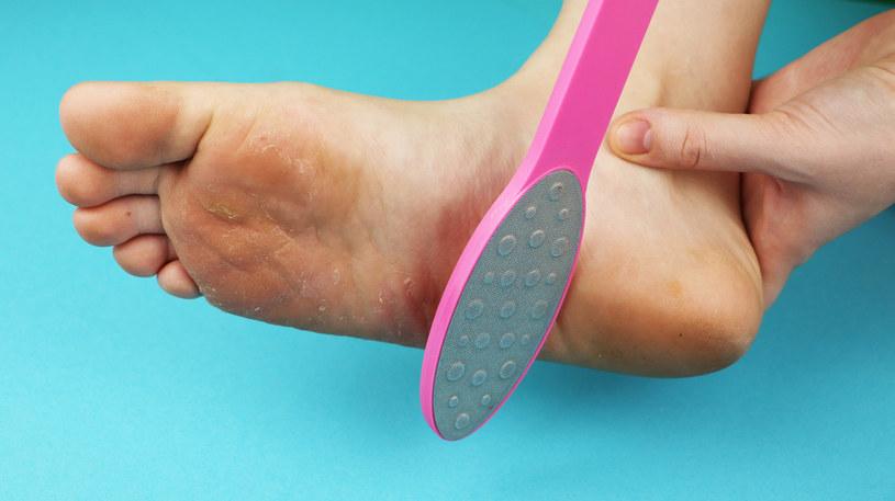 """Pumeks i inne """"genialne wynalazki do pielęgnacji stóp mogą tylko pogorszyć skórę /123RF/PICSEL"""