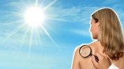 Pytania do dermatologa o pieprzyki i znamiona po lecie