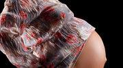 Rady na ciążowe dolegliwości