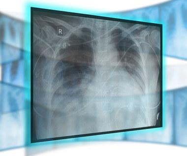 Rak płuc może pozostawać w ukryciu nawet 20 lat