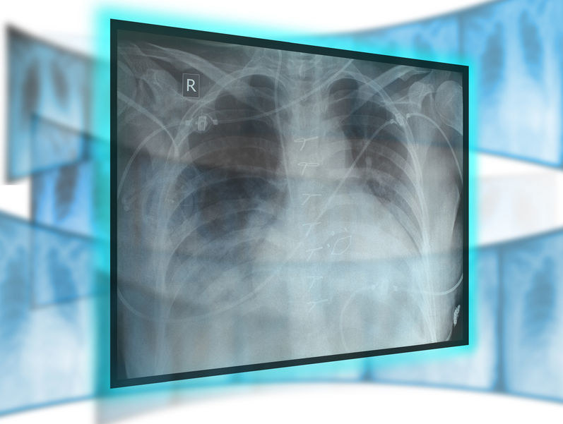 Rak płuc przez długi czasu może żyć w ukryciu /123RF/PICSEL