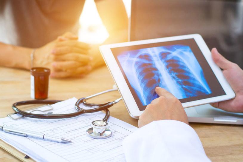 Rak płuc /©123RF/PICSEL