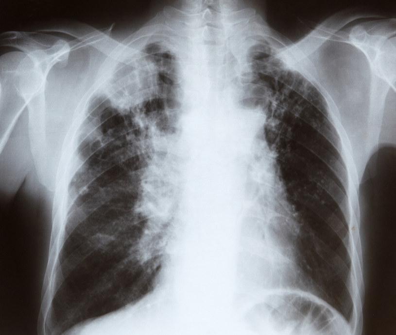 rak płuc /© Photogenica