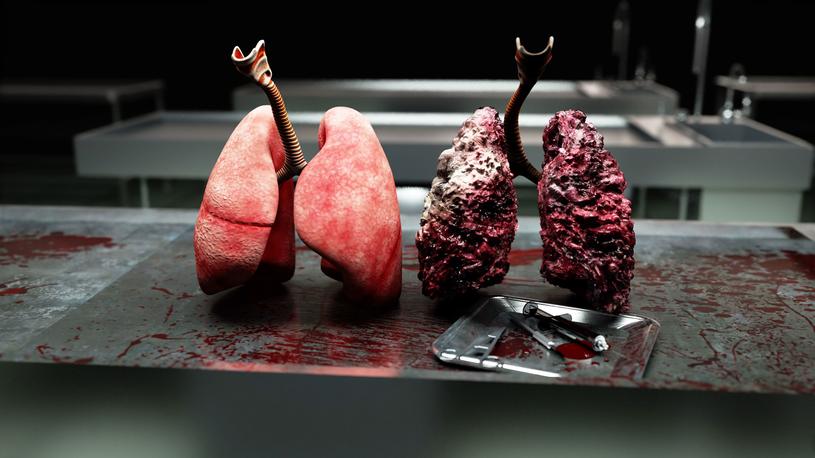Rak płuca daje charakterystyczne objawy, ale zazwyczaj pojawiają się one zbyt późno /123RF/PICSEL