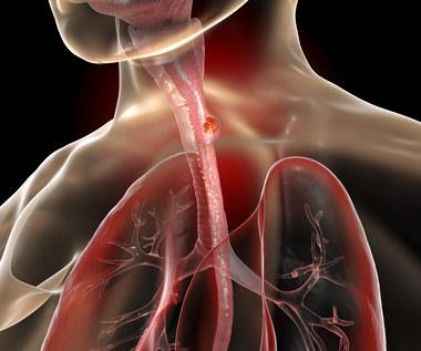 Rak przełyku - przyczyny, objawy
