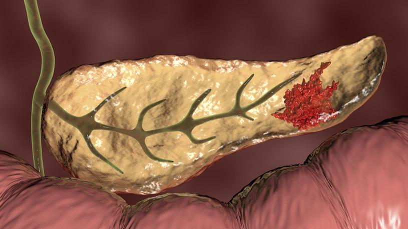 Rak trzustki często bywa wykrywany za późno /123RF/PICSEL