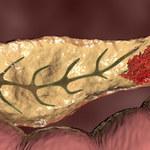 Rak trzustki: Nietypowe objawy, sposoby leczenia