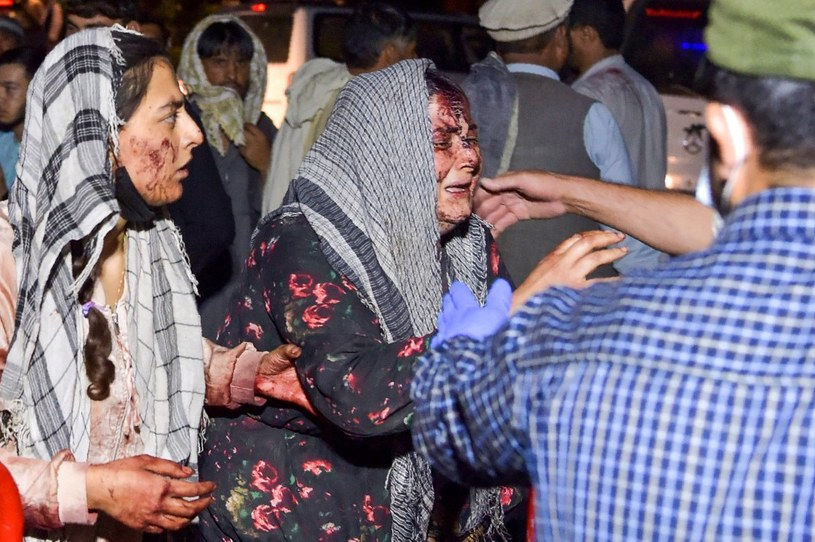 Ranna Afganka w wybuchu /Wakil KOHSAR /AFP
