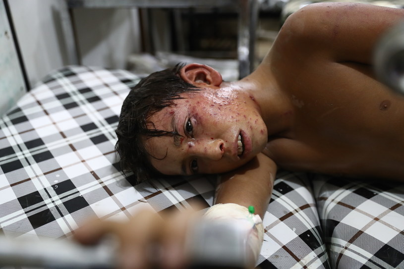 Ranny syryjski chłopiec /Abd Doumany / AFP /AFP