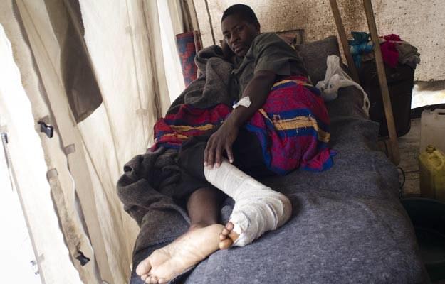 Ranny w wyniku starć armii z partyzantką w szpitalu w Rutshuru, 5 sierpnia 2012 /AFP