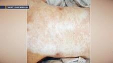 """""""Raport"""": Nowe, nietypowe objawy koronawirusa"""