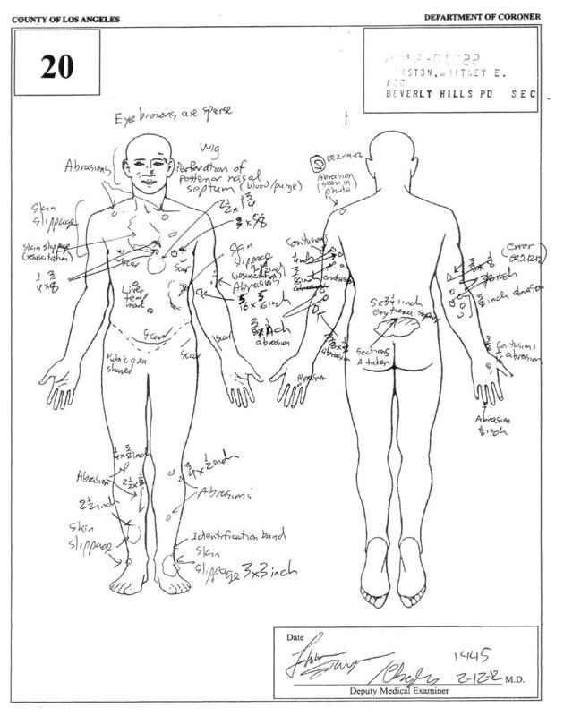 Raport z sekcji zwłok - obrażenia na ciele Whitney Houston /Splashnews