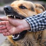 Rasy psów, które najczęściej atakują dzieci