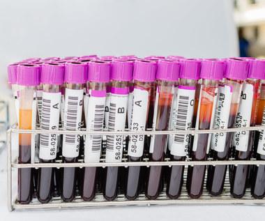 RBC, HGB, WBC w morfologii krwi. Co oznaczają? Jak interpretować wyniki?
